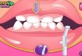 لعبة تبيض الاسنان وتنظيفهم