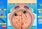 لعبة اجراء عملية جراحية في الرأس