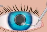 العاب جراحة العيون