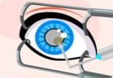 لعبة اجراء عملية جراحية لعيون سندريلا