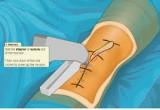 لعبة اجراء عملية جراحية للقدم